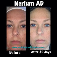 Anti-aging...made my skin tone more even, reduced large pores, and dark circles under my eyes... www.youthfulglow24.nerium.com