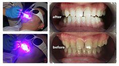 blue dental laser for teeth whitening