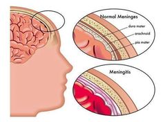 Meningitis  Meningitis is inflammation of the membranes (meninges) surrounding your brain and spinal cord. The swelling triggers headache, fever and a stiff neck. Most of the time this is caused by a viral infection but bacterial & fungal infections can also lead to meningitis http://MedicTests.com