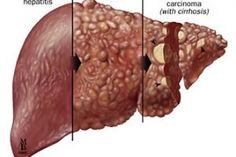 L'Epatite: studio sui pazienti dell'ambulatorio di Torino