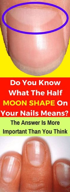 Do You Know What The Half Moon Shape On Your Nails Means The Answer Is More Important Than You Think - Strange Things in Life Health Advice, Health And Wellness, Health And Beauty, Health Fitness, Fitness Plan, Wellness Fitness, Fitness Tips, Fitness Motivation, Dry Cracked Feet