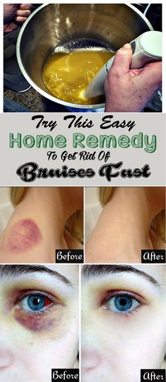 Easy home remedies for Bruises to get rid of it instantly...