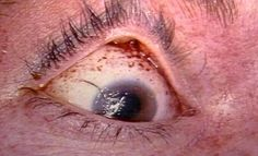 Petechiae observed in the eye of a strangulation victim. Forensic Science, Medical Science, Forensic Anthropology, Forensics, Criminal Justice, Serial Killers, Medical Conditions, Death, Odd Stuff