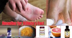 The Homestead Survival | 17 Home Remedies for Athlete's Foot | http://thehomesteadsurvival.com