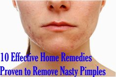 10 Effective Home Remedies Proven to Remove Nasty Pimples - Best Home Remedies
