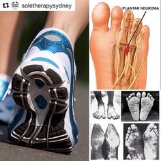 An interesting post from @soletherapysydney with original content below 👇👇 . It's important to understand the reason behind your foot pain and proactively react. Without doing so causes long term damage and high unnecessary costs. ------------------------------------------------ www.feetfeet.co.uk ------------------------------------------------ ・・・ COMMON FOOT INJURIES- Morton's Neuroma 👠 🏃🏃🏃 In Morton's neuroma numbness and pain are produced in the space between the 3rd and 4th… Morton's Neuroma, Foot Pain, Plantar Fasciitis, Photo And Video, Content, Space, Cure, Floor Space