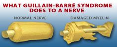 How Guillain Barre Syndrome damages nerves//FYI Merck (vaccine company) manuals list this syndrome as a vaccine side-effect.