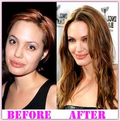 Angelina Jolie Plastic Surgery Before And After #AngelinaJoliePlasticSurgery #AngelinaJolie #aerobiker