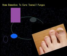 Home remedies to cure toenail fungus  Nail Fungus Remedy. You have nothing to l
