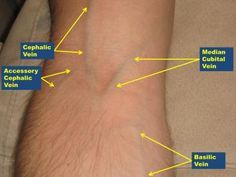 Antecubital Veins (Right Arm)