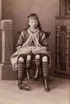 Myrtle Corbin, known as the Four-Legged Girl from Texas, was a dipygus. She was born with a severe congenital deformity of conjoined twining that caused her to have two separate pelvises and a smaller set of inner legs that she was able to move.  When she was just a month old, her father began showing her to curious neighbors for a dime. Eventually she attracted the attention of P.T. Barnum, and began performing when she was 13. She later performed with the Ringling Bros. and Coney Island.