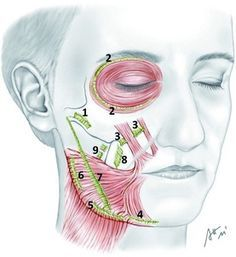 Figure 6: Retaining ligaments of the cheek. True retaining ligaments:...