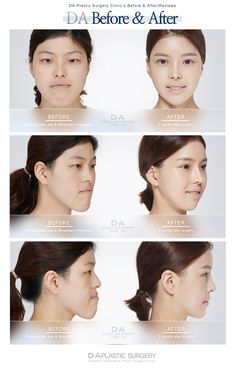 Double Jaw Surgery: Real DA patient before and after  Ask inquiry/Make a reservation email:  info-en@daprs.com  #daplasticsurgery #PlasticSurgery #CosmeticSurgery #Gangnam #GangnamPlasticSurgery #Korea #KoreaPlasticSurgery #KoreanBeauty #KoreaBeauty #Beauty #GirlyThings #VLine #FacialContouring #Model #DaModel #BeforeAfter #BeforeAndAfter #DoubleJawSurgery