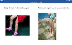 PSORIAZIS-CORESPONDENTA  DENIPLANT: Trateaza-ti dermatita cu Deniplant la Sovata