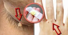 Receita Caseira Para Remover as Verrugas Naturalmente   Dicas de Saúde