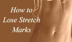 Tips to Get Rid of Stretch Marks Fast Stretch marks can be the result of pregnancy or any deficiency in useful skin nutrients. Try out these simple and easy tips to get rid of stretch marks. Pimples Under The Skin, Stretch Mark Remedies, Prevent Wrinkles, Stretch Marks, How To Get Rid, Cellulite, Skin Care Tips, Health, Beauty
