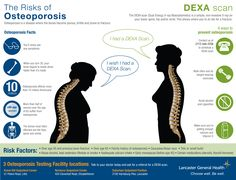 Learn osteoporosis facts, risk factors, and 4 ways to prevent osteoporosis. Lancaster General Health provides DEXA scans at 3 Osteoporosis Testing Fac Bone Health, Women's Health, Nursing Classes, Arthritis Causes, Bone Fracture, Bone Strength, Bone Loss, Bone Density, Knowing You