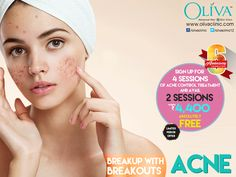 Are you frustrated with pimples? Get a Pimple clear face with holistic acne treatments @Oliva Clinics. Avail Flat 33% off on Pimple removal treatment. Rush today to any of your nearest Oliva Clinics to avail this 6th Anniversary special limited period offer. or call 040-44757575 for book your appointment or to know about the exciting offers on others services.