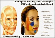Videoconferencing: Orthotropics Case Study, Adult Orthotropics, Midface Retraction & Facial Growth By Dr. Mike Mew | Odonto-TV