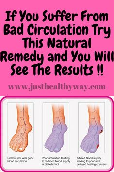 Those who suffer from blood circulation failures rarely show any symptoms during the early stages of the disease.