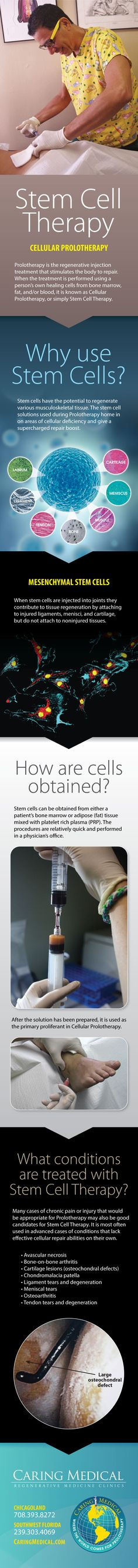 Stem cells have the potential to regenerate various muscloskeletal tissue. The stem cell solutions used during Prolotherapy hone in on areas of cellular deficiency and give a supercharged repair boost.