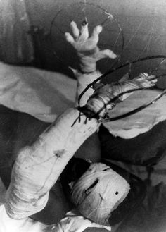 A victim of the Chernobyl nuclear disaster in a Kiev burn center in July 1986. The explosion released about 400 times more radiation than the U.S. atomic bomb dropped over Hiroshima. Hundreds of thousands were sickened and once-pristine forests and farmland remain contaminated.