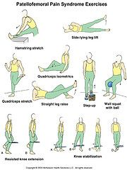 Exercises for Patellofemoral Pain Syndrome or Runner's Knee