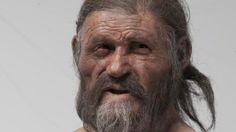 Cientistas descobriram que Ötzi, o Homem de Gelo, sofria de infecção bacteriana ainda presente nos dias de hoje e puderam 'voltar no tempo' analisando genoma de micro-organismo.