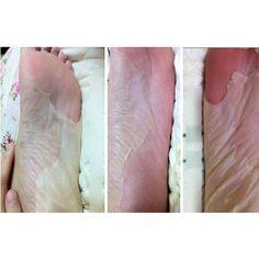 Hautpflege 20 Stücke = 10 Pair Peeling Füße Maske Baby Fuß Maske Peeling Erneuerung Entfernen Abgestorbene Haut Nagelhaut Für Heels Socken Für Pediküre Socken Füße