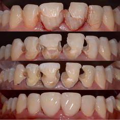 "1,336 Me gusta, 17 comentarios - Instagram Dentists Gallery 👄 (@styleitaliandentistry) en Instagram: ""follow @fareed2212"""