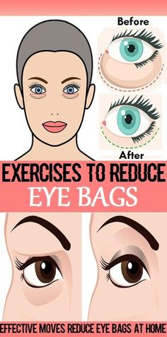 Effective Exercises to Reduce Eye Bags at Home - Workout Hit