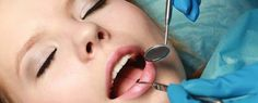 Dental anxiety is very common and can prevent patients from getting the necessary dental care. Bramcountry Dental gives you a safe and effective solution to a dental phobia with advanced sedation dentistry techniques. Smile Dental, Dental Care, Dental Hygienist, Dental Phobia, Sedation Dentistry, Sleep Dentistry, Emergency Dentist, Botox Injections, Dental Bridge