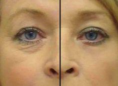 Natural Treatments, Natural Remedies, Argan Oil Serum, Fruit Smoothies, Clear Skin, Skin Care Tips, Beauty Hacks, Health, 1 Monat