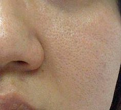 Dermatologist Recommend: How To Treat Facial Pores: The Best Products And Treatments To Reduce Pore Size