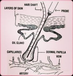 87 Best Electrolysis Teaching info  images in 2018 | Hair Removal