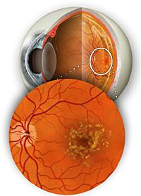 Age-related macular degeneration (AMD or ARMD) is a leading cause of vision loss. Learn about types, symptoms, treatment and prevention - AllAboutVision.com