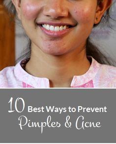 How to Get Rid of Acne Naturally..