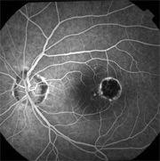 Lovely Presumed Ocular Histoplasmosis | Williamson Eye Institute (765) 477 2020