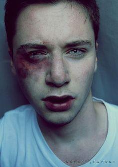Znalezione obrazy dla zapytania boy bruise tumblr