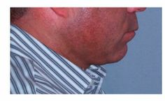 Chicago Chin Augmentation Before and After Photos - Naperville Plastic Surgery Photo Gallery - Dr. Facial Implant, Chin Implant, Plastic Surgery Photos, Cosmetic Procedures, Medical Problems, Clinic, Need To Know, Photo Galleries, Things To Come