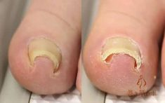 Cool Japanese Invention To Fix Ingrown Toenails Japanese Inventions, Ingrown Toe Nail, Nail Forms, Toe Nails, Foot Pain, Sculptures, Health, Tips, Youtube