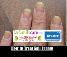 #Nail #fungus #treatment is essential. The sooner you start treatment the better. In the event that left muntreated, nail fungus can get to be exceptionally excruciating and unattractive. Sadly numerous individuals disregard nail fungus until the manifestations decline.