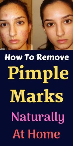 How To Remove #Pimple Marks Naturally At Home - 5 Powerful Home Remedies. The pimples and pimple spots appear, in most cases, as the natural boils on ... Home Remedies To Get Rid Of Acne Scars And Pimple Marks ... Pimple Marks, Acne Marks, Acne Mark Removal, Home Remedies For Pimples, Face Home, Beauty Tips For Glowing Skin, How To Get Rid Of Pimples, Remove Acne, Skin Care