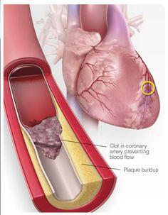 Spread the loveApa itu defenisi Serangan Jantung? Serangan jantung adalah pembunuh nomor satu di Amerika dan menyebabkan satu kematian dalam rentang 34 detik di dunia, akibat penyakit jantung dan pembuluh darah. Penyakit jantung koroner telah membunuh lebih dari 375 ribu orang tiap tahun. Untuk itu penting bagi setiap orang untuk belajar mengenai serangan penyebab serangan