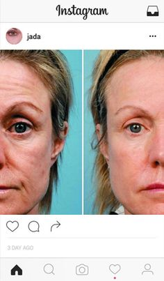 Collamask Crepy Skin, Beauty Care, Hair Beauty, Pores, Girls Life, Anti Wrinkle, Good Skin, Glowing Skin, Anti Aging