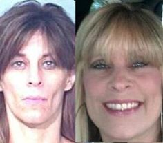 Face of Meth Recovery Goes Viral | The Fix