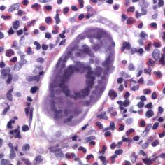 S haematobium in bladder