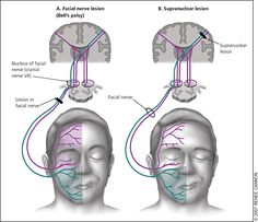 Bell's Palsy: Diagnosis and Management - American Family Physician