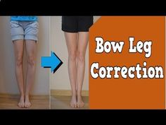 Bow Legs Correction-Exercise - bow-legs-correcti... Bow Leg Correction, Bow Legged, Bow Leg Surgery, Bow Shaped Legs, Can You Fix Bow Legs 100% natural way to straighten your legs Having bowlegs or knock-knees is frustrating… As it appears the only way to straighten your legs is to have expensive surgery. But that's risky… as all sorts of serious problems can arise… and there's no guarantee it will work anyway. Plus, the horrendous scars it leaves are downright ugly. - Looking for a Pe...