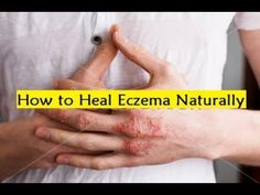 How to Heal Eczema Naturally - How I Cured My Eczema Naturally